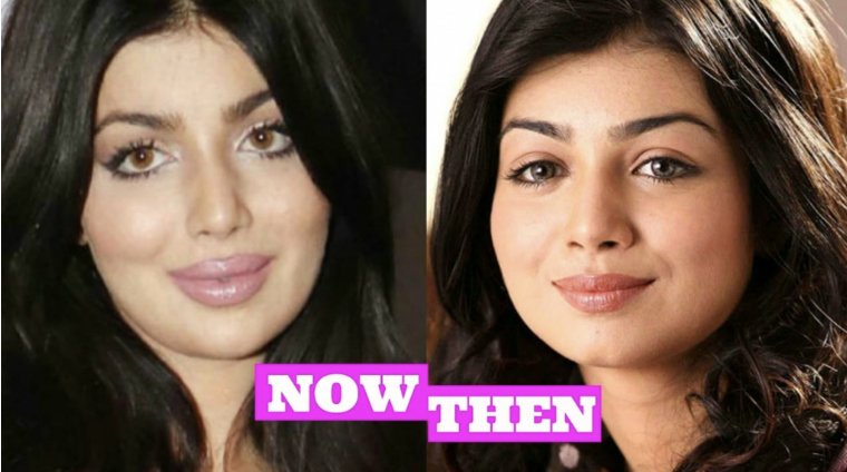 Ayesha Takia Surgery